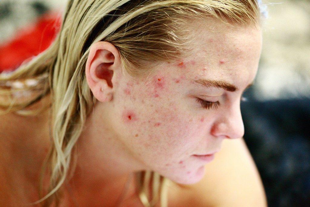 cicatrici da acne